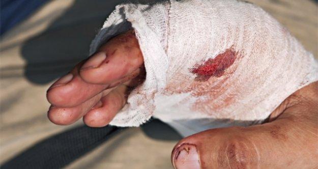 Çine'de, Orakla Bir Kişi Yaralandı